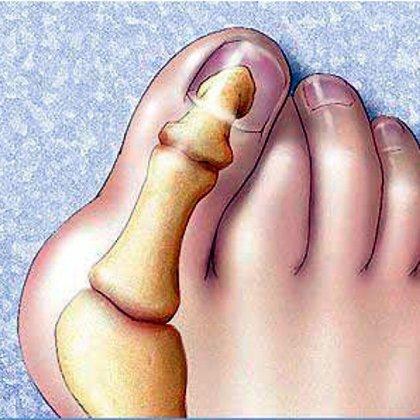 Как лечить шишки на пальцах ног?