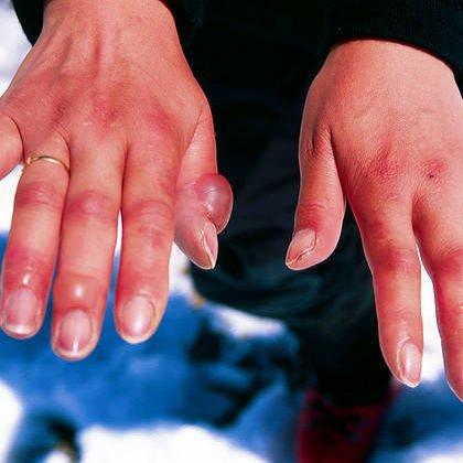 Железодефицитная анемия причины симптомы лечение