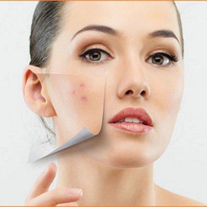 Как быстро убрать воспаление от прыща на лице?