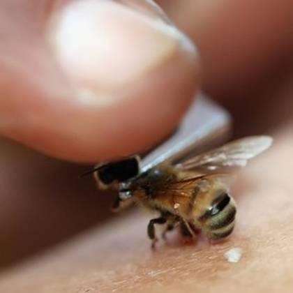 Как снять опухоль после укуса осы: первая помощь при укусе осы