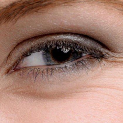 Как уменьшить морщины под глазами?
