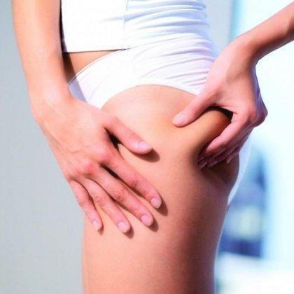 Как избавиться от растяжек на ногах?