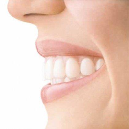 Как выровнять зуб без брекетов?