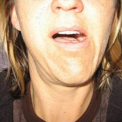 Как определить перелом челюсти?