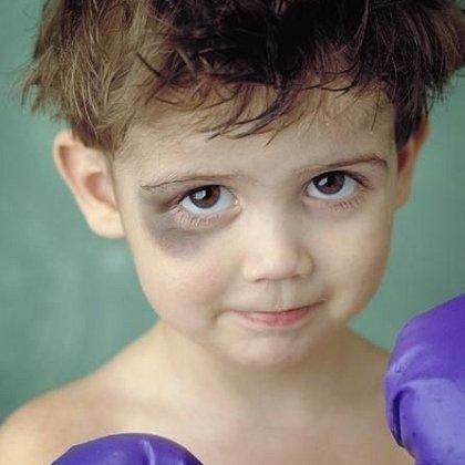 Гипоксия головного мозга симптомы у взрослых лечение отзывы симптомы