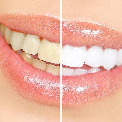 Отбеливатель для зуб