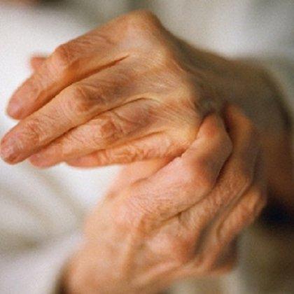 Мазь для лечения аллергии на коже
