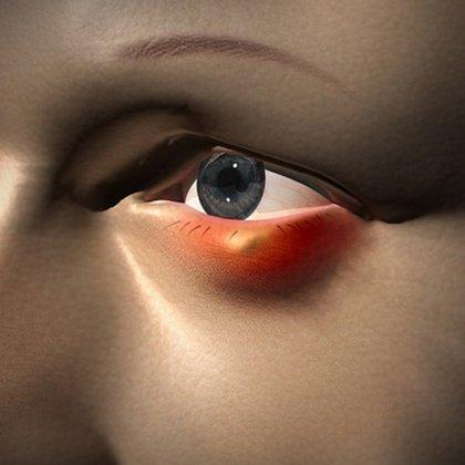 Как быстро избавиться от ячменя на глазу?
