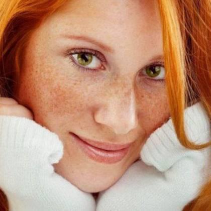 Пигментные пятна на лице - не приговор вашей красоте! Узнайте, как лечить пигментные пятна!