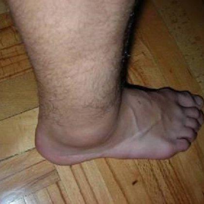 Текут ноги что делать лечение народными средствами 14