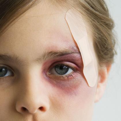 Как срочно снять гематому с лица? Что поможет снять гематому с лица?