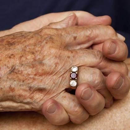 Как убрать возрастные коричневые пятна на руках: как осветлить коричневые пятна на руках?