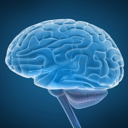 Как определить опухоль головного мозга: симптомы, лечение