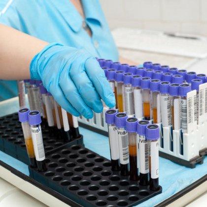 Как повысить гемоглобин в крови: повышение железа в крови