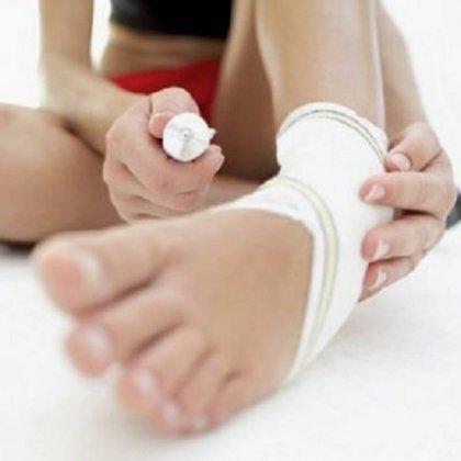 Как вылечить растяжение мышц?
