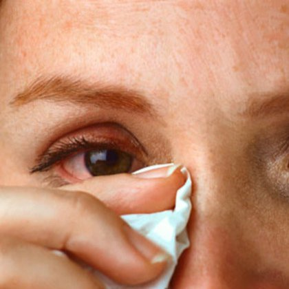 аллергия слезятся глаза что делать