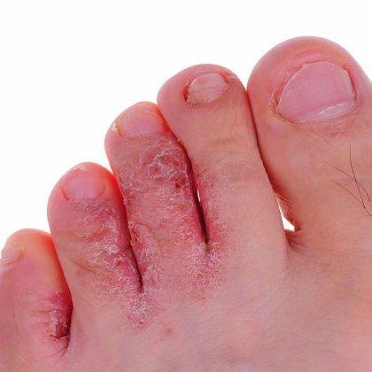 Как вылечить грибок ногтя: полезные советы