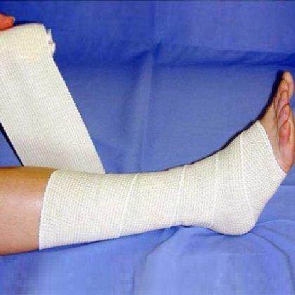 Как бинтовать ногу эластичным бинтом?