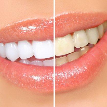 Как отбелить зубы в домашних условиях народными средствами?