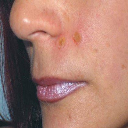Как ухаживать за кожей после удаления родинки?