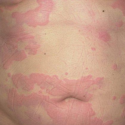 Как вылечить крапивницу, вызванную аллергией?