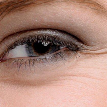 Как убрать морщины у глаз?