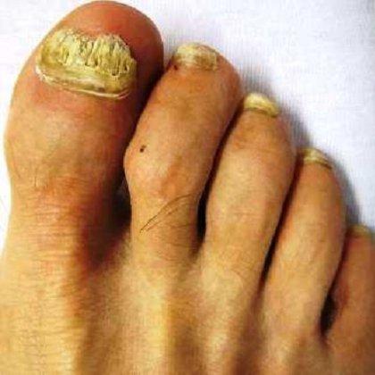 Грибок ногтей на ранней стадии лечение