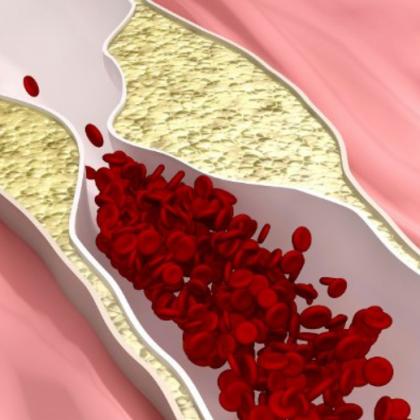 очистить сосуды от холестерина быстро