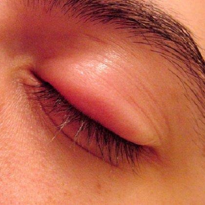 Как снять отеки под глазами от укуса?