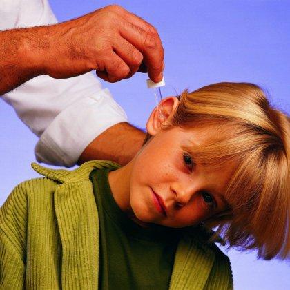 Как промыть ухо перекисью водорода?