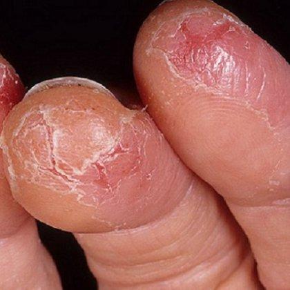Можно ли самостоятельно вылечить грибок ногтей на ногах
