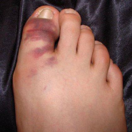 Грибок на ногах пальцев чем лечить народные средства