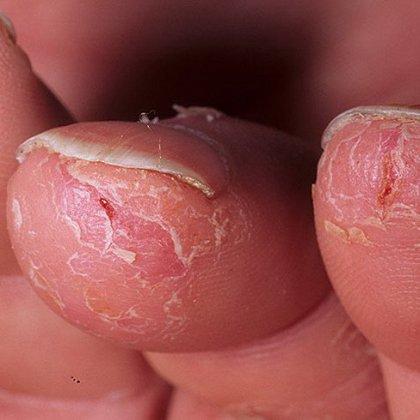 Мустела от атопического дерматита