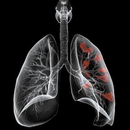 Как восстановить легкие после курения?