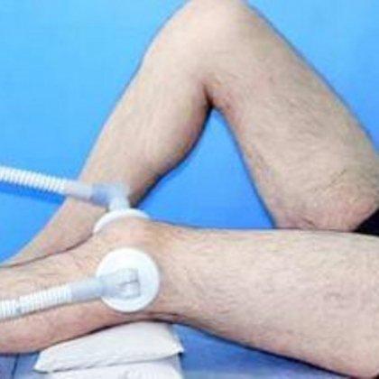 реабилитационное лечение при переломах коленного сустава