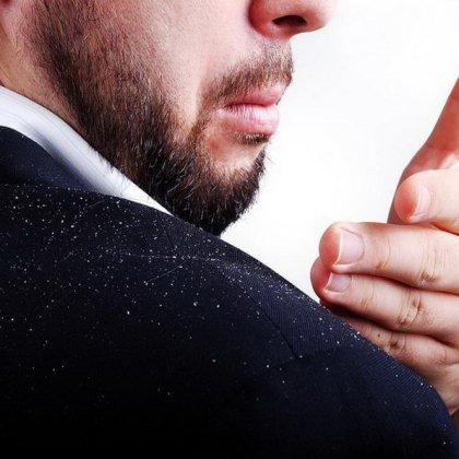 Как избавиться от перхоти мужчине эффективнее всего?