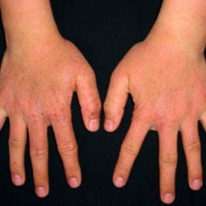 Крем при атопическом дерматите у детей купить
