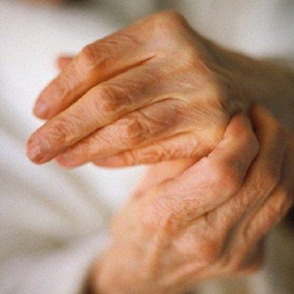 Артроз как лечить народными методами
