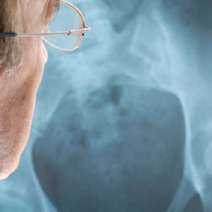 Деформирующий артроз плечевого и акромиально-ключичного суставов