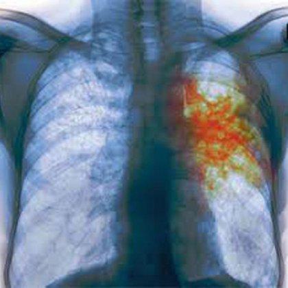 Как вылечить туберкулез народными средствами?