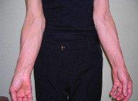- Флебэктомия удаление (операция) вен варикозных